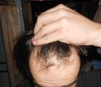 vlasová linie