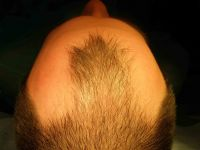 oholena hlava na 8 mm