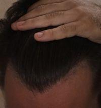 Vlasova linia
