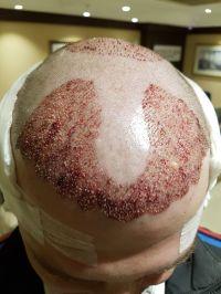 transplantacevlasu1.jpg