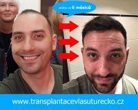 transplantacevlasu2..jpg