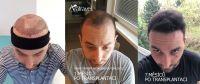transplantace_vlasu..jpg