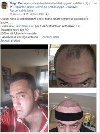 transplatace vlasu Dr. Serkan 2018