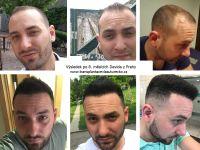 Transplantace_vlasu_.jpg