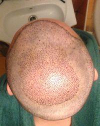 první mytí hlavy tři dny po zákroku