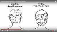 zjistěte si zda jste vůbec vhodným kandidátem pro kvalitní transplantaci vlasů