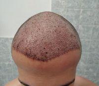 Den po transplantaci - příjmová oblast i s bonuovým otokem čela, který zmizel již následující den