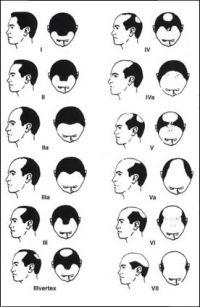 NW stupně plešatosti při androgenní alopecii.