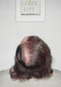 C. transplantace od dr. Koňaříka, Vsetín